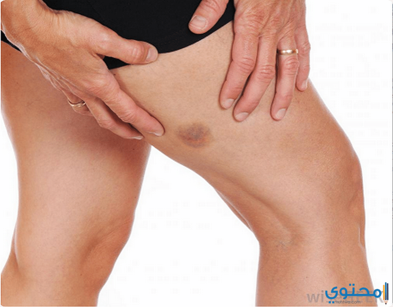 طرق علاج الكدمات التي تظهر على الجسم