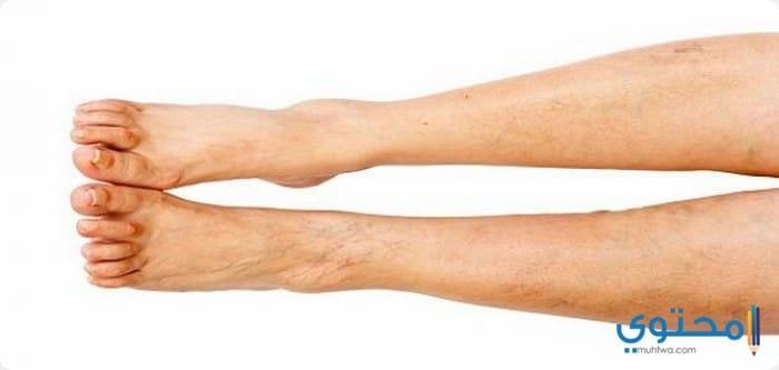 أعراض دوالى الساقين