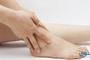 أسباب وعلاج تورم الساقين والقدمين