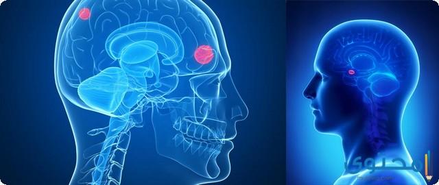أعراض ورم المخ