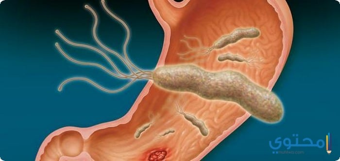 أسباب الإصابة ببكتيريا المعدة