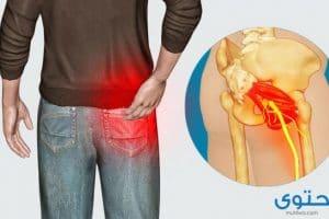 ألم العصب الوركي وأسبابه وطرق العلاج