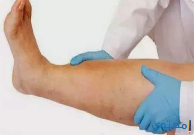 أندوريفابان Andorivaban أقراص لمنع تجلط الدم داخل الاوردة
