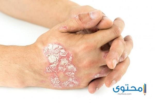 أنواع أمراض الجلد بالصور - موقع محتوى
