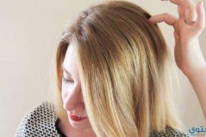 ما هي انواع قشرة الشعر وكيف اتخلص منها ؟
