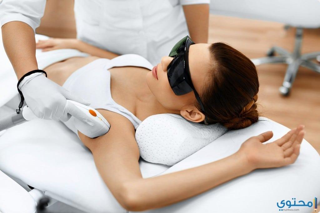 إجراء عملية ازالة الشعر