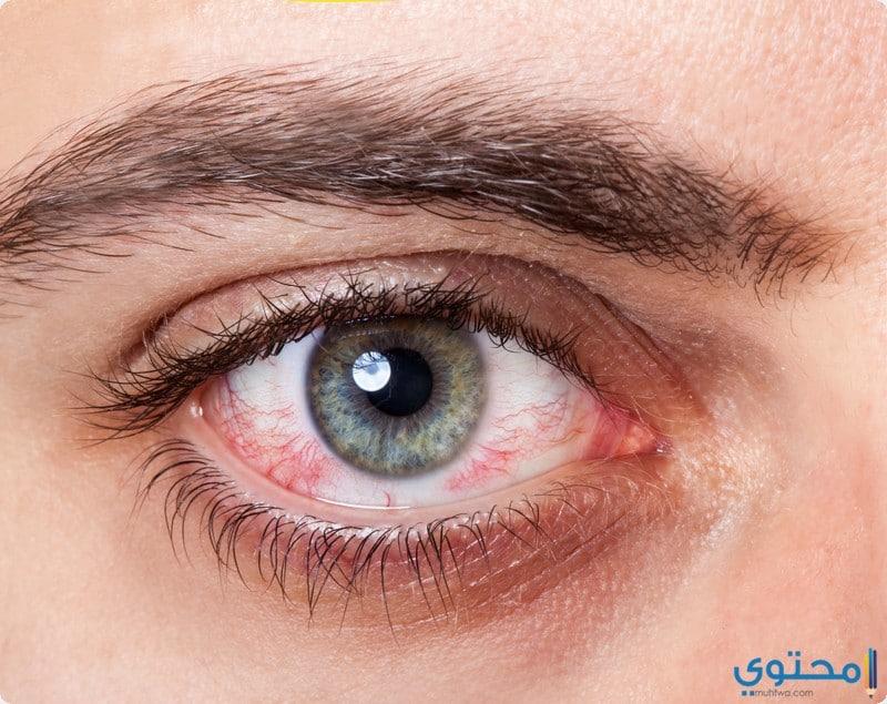 أشكال إفرازات العين