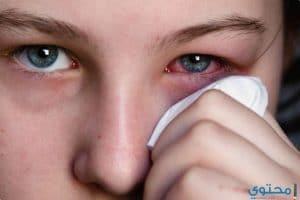 أسباب خروج مادة بيضاء أو صفراء من العين