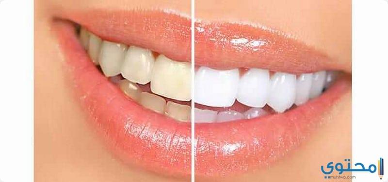 اصفرار اسنان