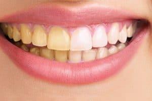 طرق التخلص من اصفرار الأسنان