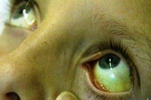 أسباب أصفرار العين وطرق علاجه