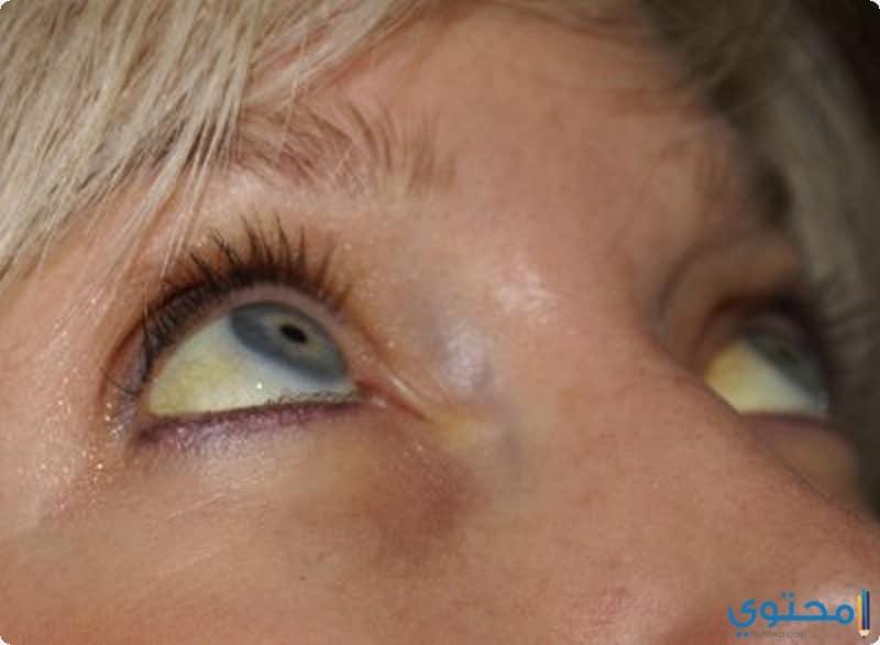 أسباب أصفرار العين وطرق علاجه موقع محتوى