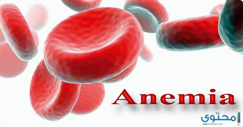 ما هي أسباب الإصابة بمرض الأنيميا