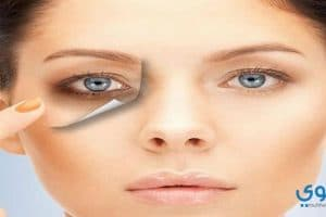 وصفات طبيعية للتخلص من الهالات السوداء حول العينين
