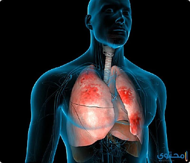 كيفية الإصابة بالعدوى الالتهاب الرئوي