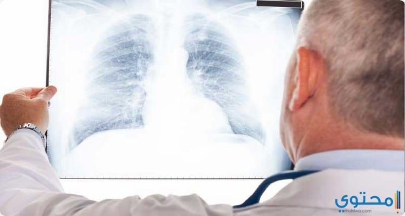 كيفية تشخيص الالتهاب الرئوي