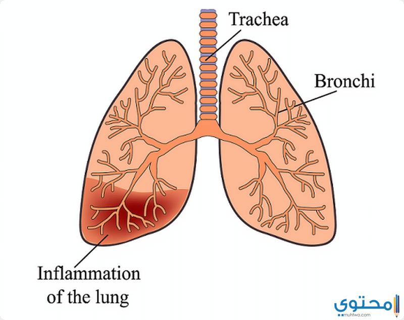 طرق علاج مرض الالتهاب الرئوي