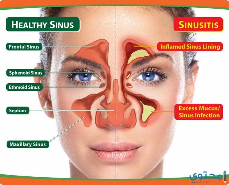 ما هو التهاب الجيوب الأنفية؟