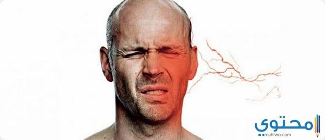 أسباب التهاب العصب الخامس