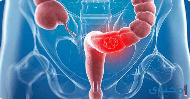 طرق علاج القولون العصبي للحامل