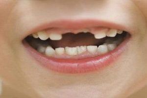 تفسير حلم رؤيه سقوط الأسنان بالمنام