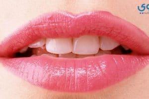 كيف أتمكن من تصغير الفم بالطرق الطبيعية ؟