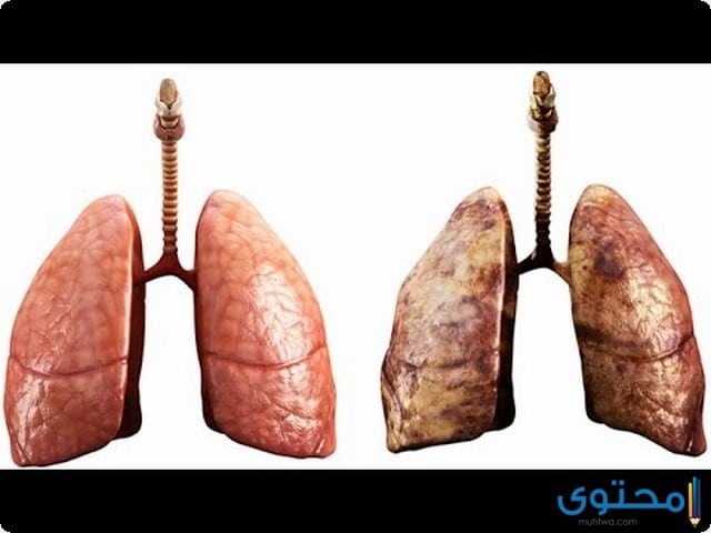 أسباب تلوث الرئتين