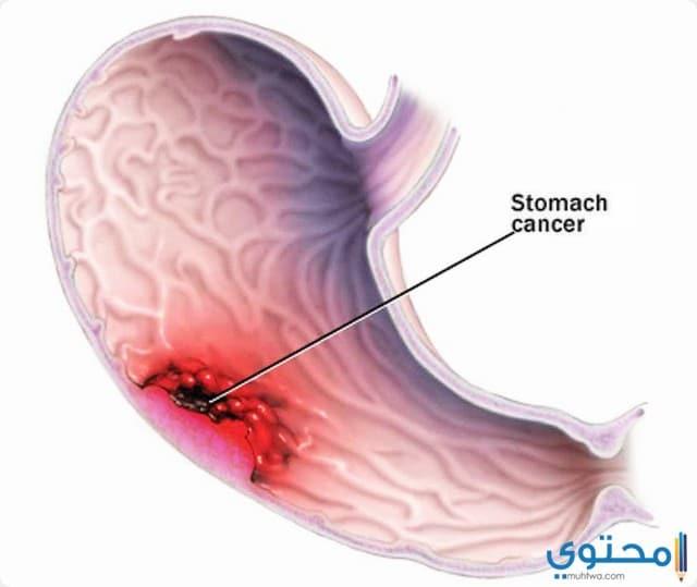 العلاج الثلاثي لجرثومة المعدة