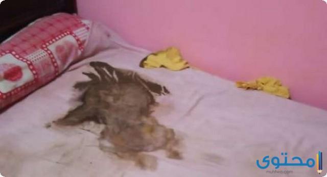 حادثة الطفل الرضيع