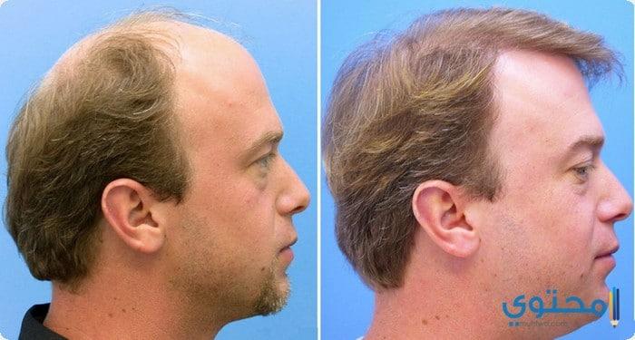 أطباء زراعة الشعر فى مصر