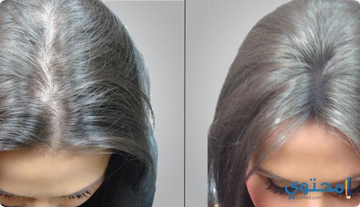 زراعة الشعر بالشريحه
