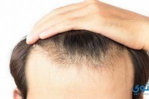 أسعار زراعة الشعر الطبيعي في الجزائر