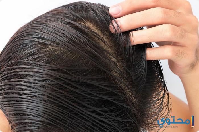 أسعار وأماكن زراعة الشعر الطبيعي في مصر موقع محتوى