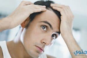 أسعار وأماكن زراعة الشعر الطبيعي في مصر