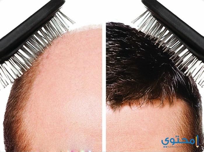 زراعة الشعر فى العالم 2018