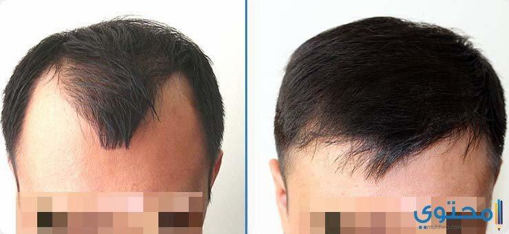 نجاح عمليات زراعة الشعر ومؤشراته
