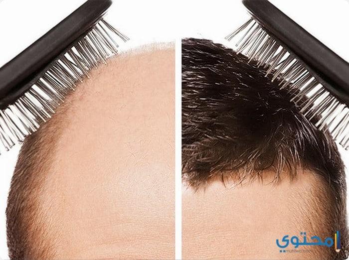 زراعة الشعر فى تركيا