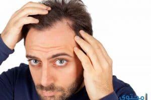 أسعار زراعة الشعر الطبيعي في تركيا 2018