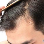 عيادات وأسعار زراعة الشعر في ايران 1439