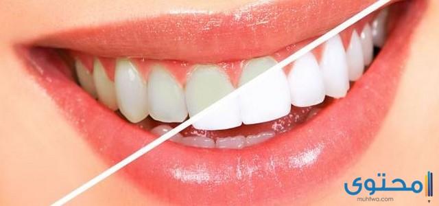 سعر تنظيف الأسنان في مصر