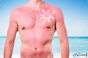 الأسعافات الأولية لعلاج ضربة الشمس للكبار والصغار