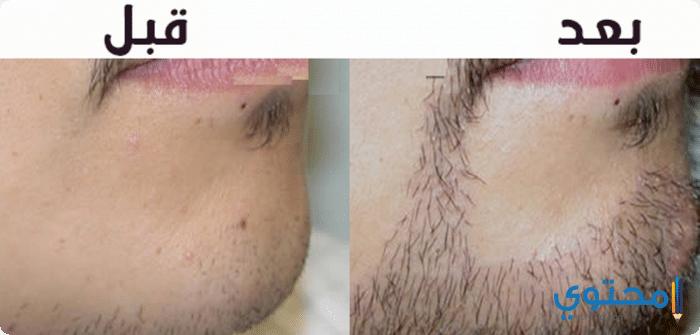 انبات شعر الذقن