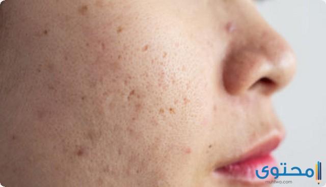طرق علاج الحبوب تحت الجلد