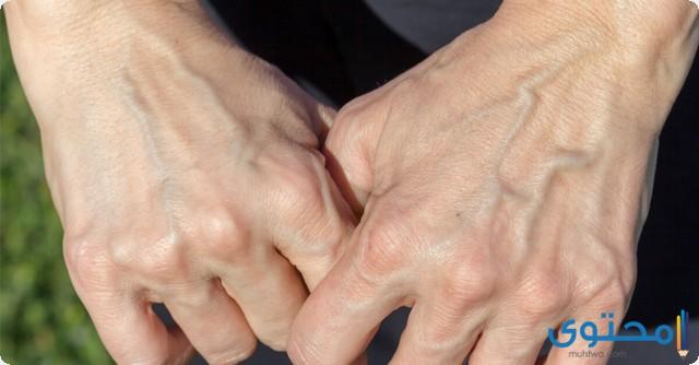 ظهور عروق اليد الخضراء