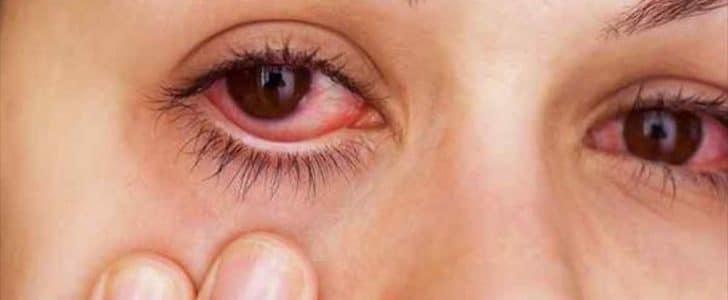 علاج احمرار العين في المنزل