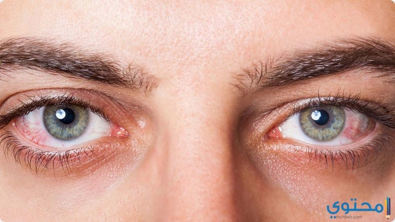 اهم أسباب احمرار العين