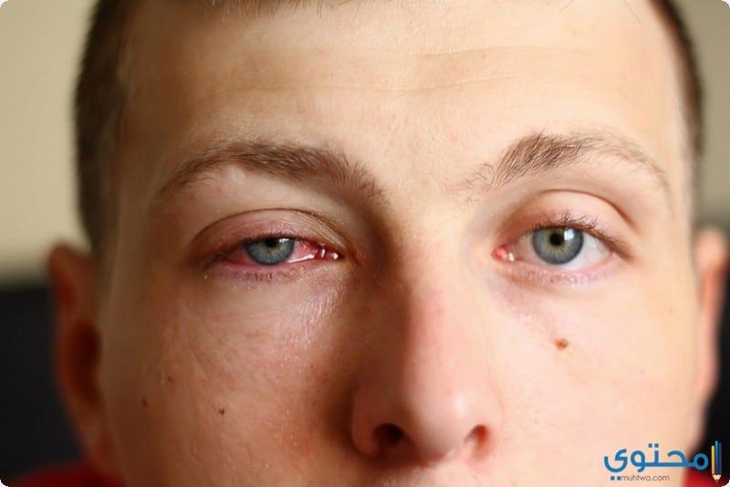 مسببات الاصابة باحمرار العين