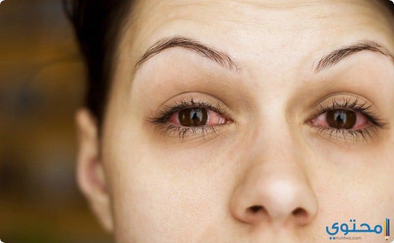 علاج احمرار العين طبيعيا