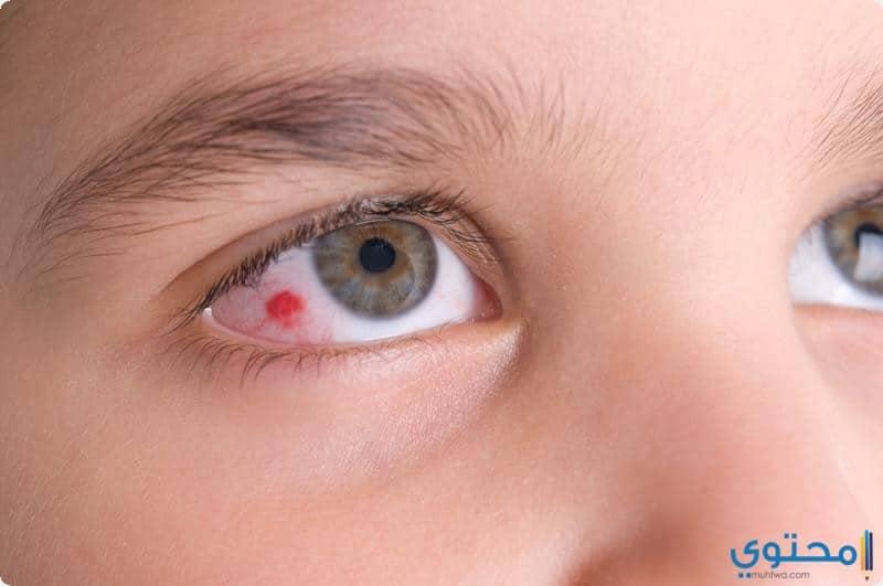 طرق علاج احمرار العين
