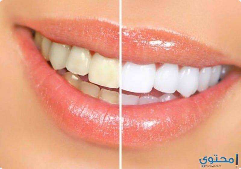 للوقاية من اصفرار الأسنان